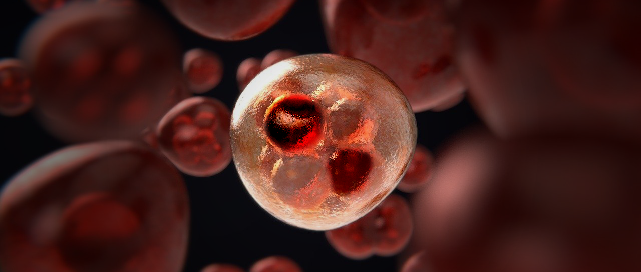 Inflammation responsable de certaines cellule cancéreuse